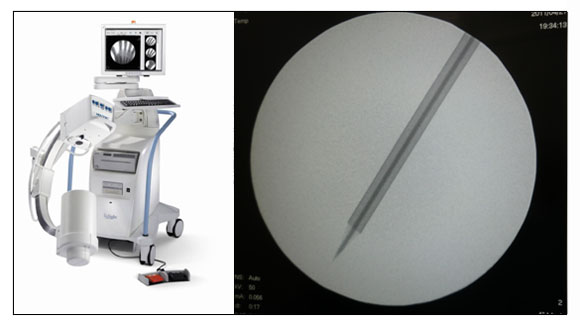 HOLOGIC社「InSight」ミニCアームX線診断装置 実際の画像