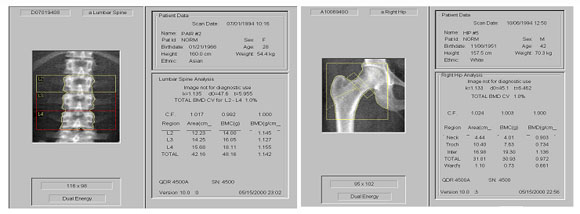 腰椎データ・大腿骨データ